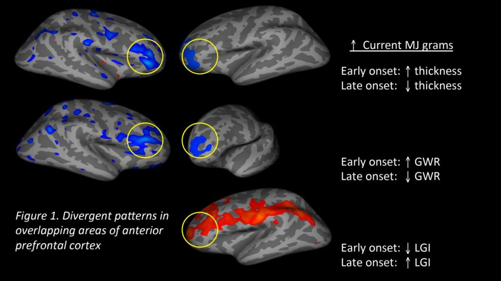 Starting Age of Marijuana Use May Have Long-Term Effects on Brain  Development - Center for BrainHealth